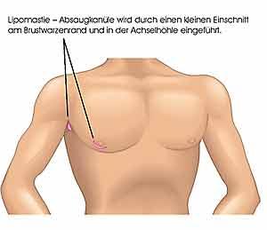 Welche von den Öbungen, die Brust zu vergrössern